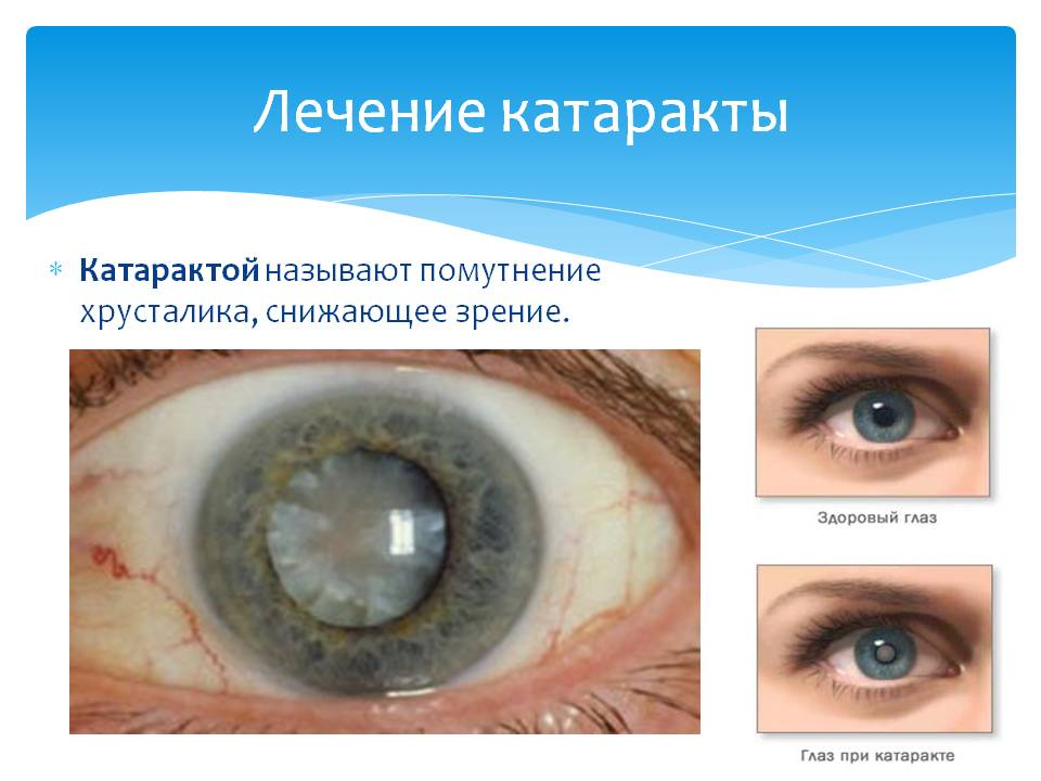 Катаракта: что это такое, симптомы, признаки, причины, лечение