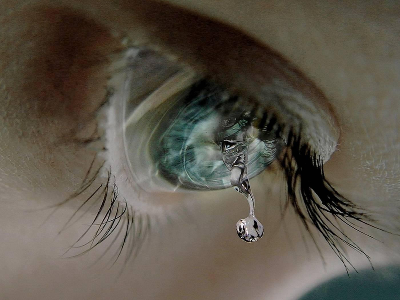 Очень сильно болят глаза после слез