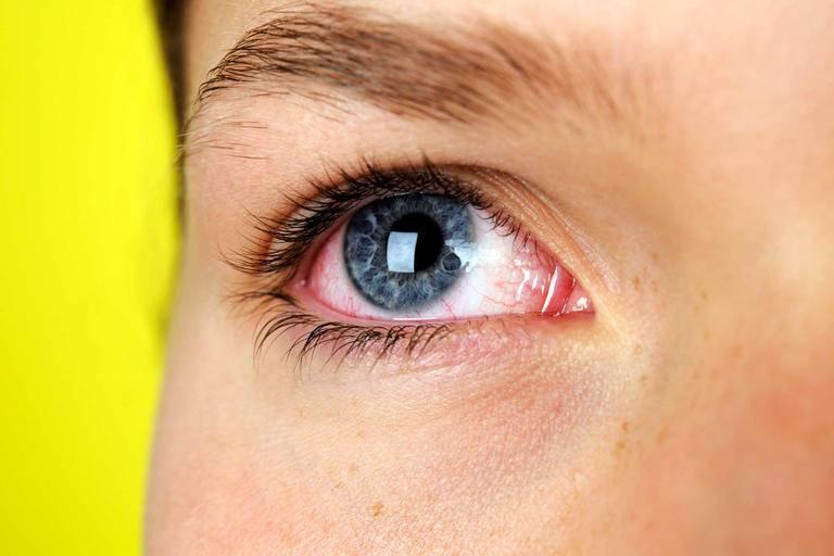 Глазные капли от усталости глаз от компьютера - список лучших, отзывы