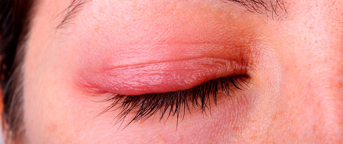Что это такое — блефарит: симптомы и лечение