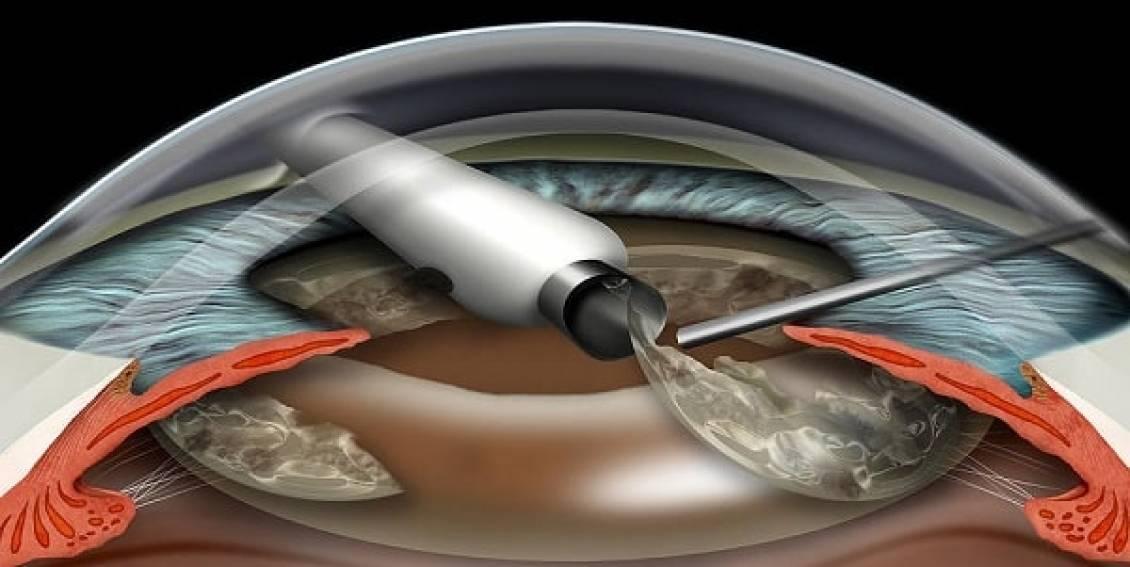 Хрусталик глаза: какой лучше импортный или отечественный, искусственный при катаракте, виды и срок службы, как заменить повторно