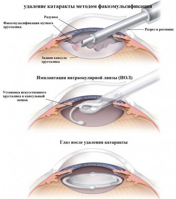 Особенности и преимущества факоэмульсификации катаракты