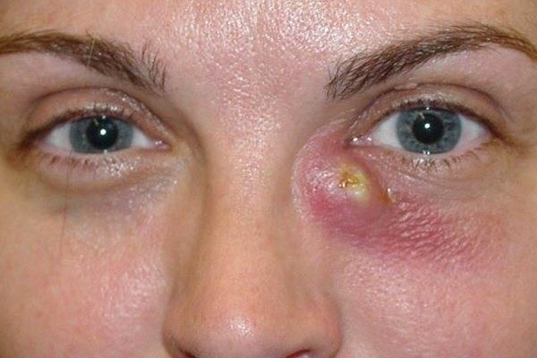 Флегмона глазницы - симптомы болезни, профилактика и лечение флегмоны глазницы, причины заболевания и его диагностика на eurolab