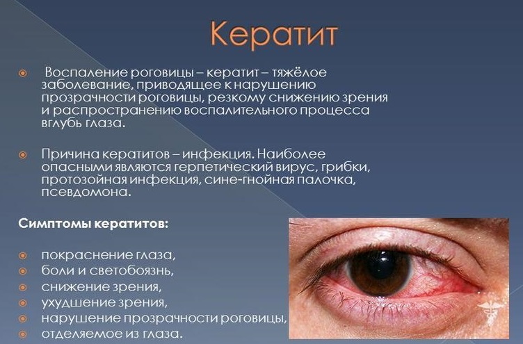Роговица глаза: строение и фугкции, что такое преломляющая сила, питание