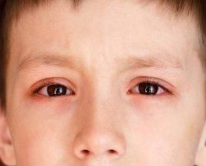 Можно ли купать ребенка при конъюнктивите комаровский