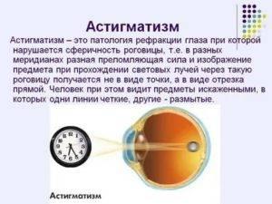 Пресбиопия глаз – причины, симптомы и лечение, что это такое