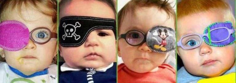 Окклюдер: детский или взрослый глазной пластырь, его основные виды и особенности, критерии выбора