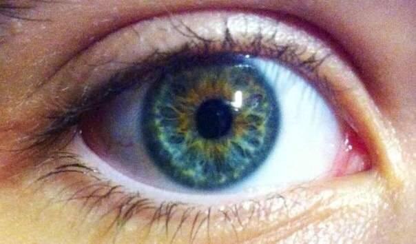 Почему у человека может поменяться цвет глаз