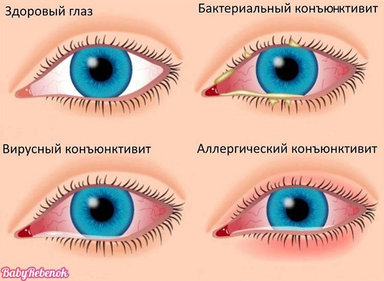 Герпетический конъюнктивит: причины, симптомы, лечение, что делать если глаз болит изнутри