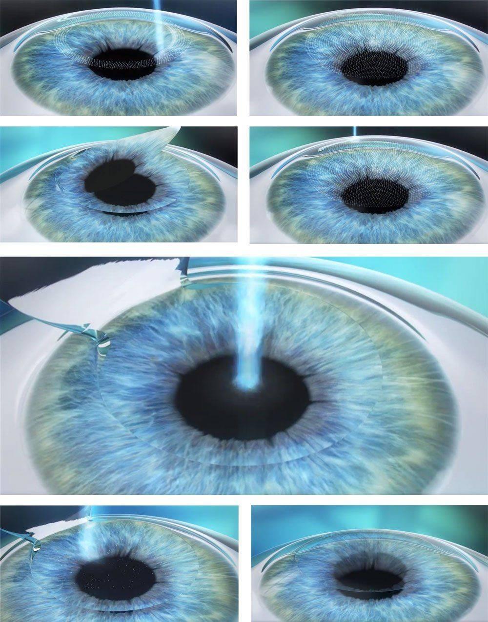 Ласик или эпи ласик: что лучше для коррекции зрения?