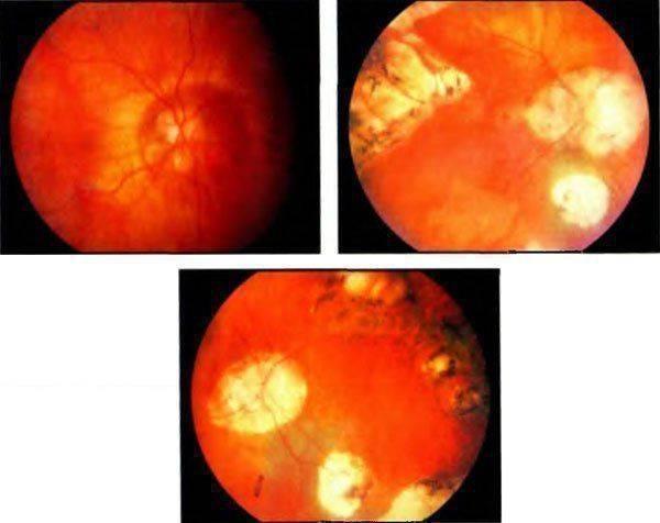 Миопический конус и стафилома сетчатки на глазном дне - диагностика и лечение