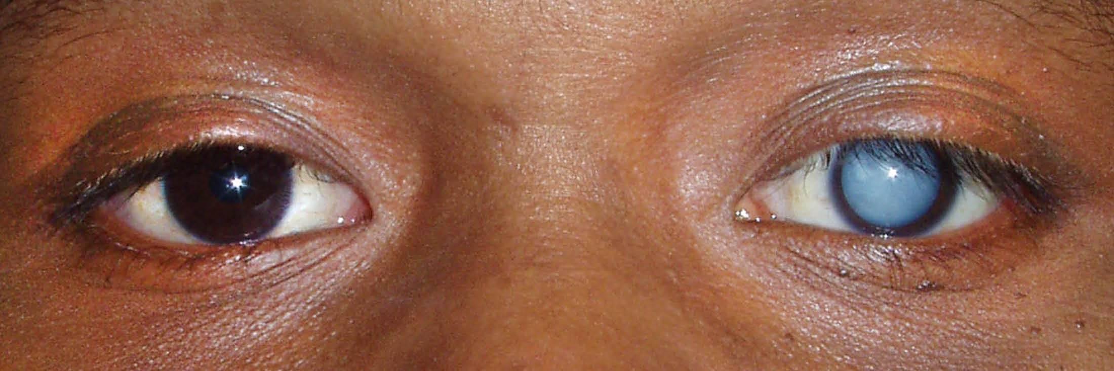 Ядерная катаракта у пожилых людей: что это такое, причины, симптомы различных видов, лечение бурой и старческой форм заболевания, профилактика