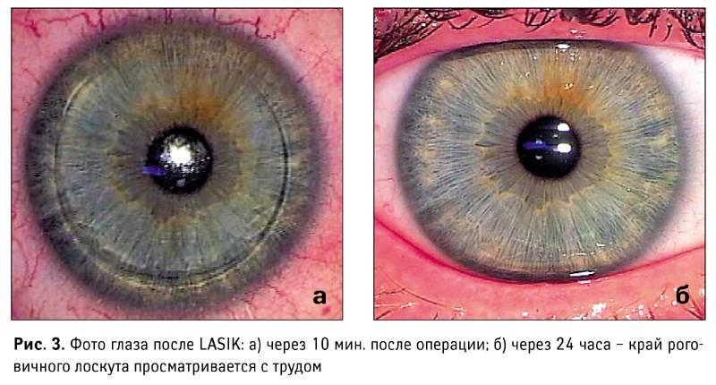 Глаза после коррекции зрения — как не потерять зрение повторно