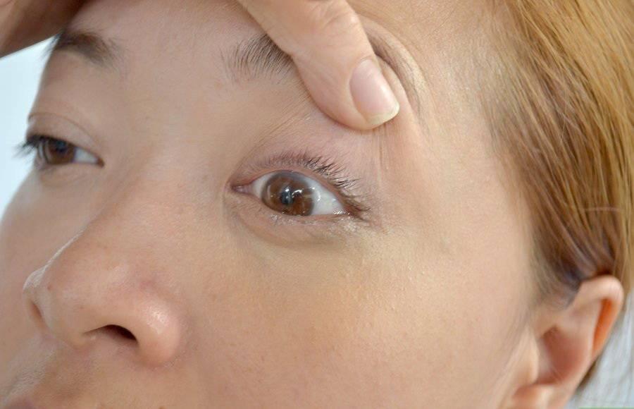 Мир слепых: что видят незрячие люди?