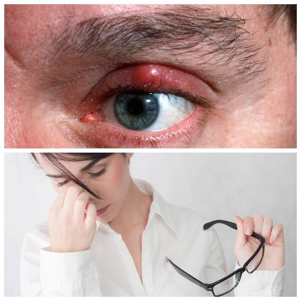 Боль в глазу при надавливании на глазное яблоко
