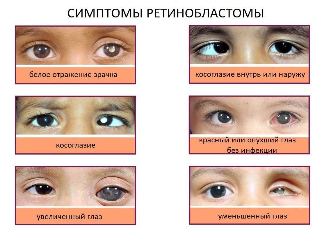 Ретинобластома (краткая информация)