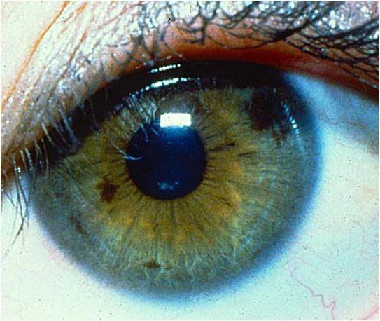 Белая точка, пятно на радужке глаза: причины возникновения, диагностика и способы избавления
