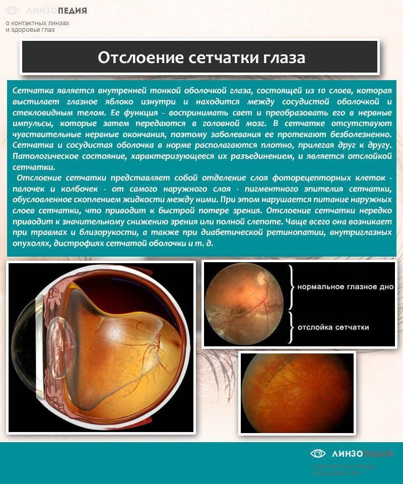 Особенности развития и лечения отслойки стекловидного тела