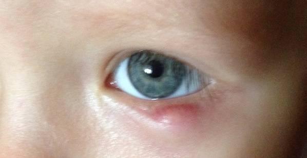 """Халязион у ребёнка: симптомы, причины, лечение - """"здоровое око"""""""