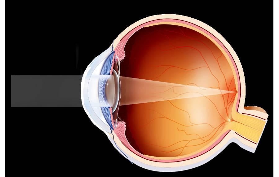Факосклероз хрусталика глаза: причины и лечение