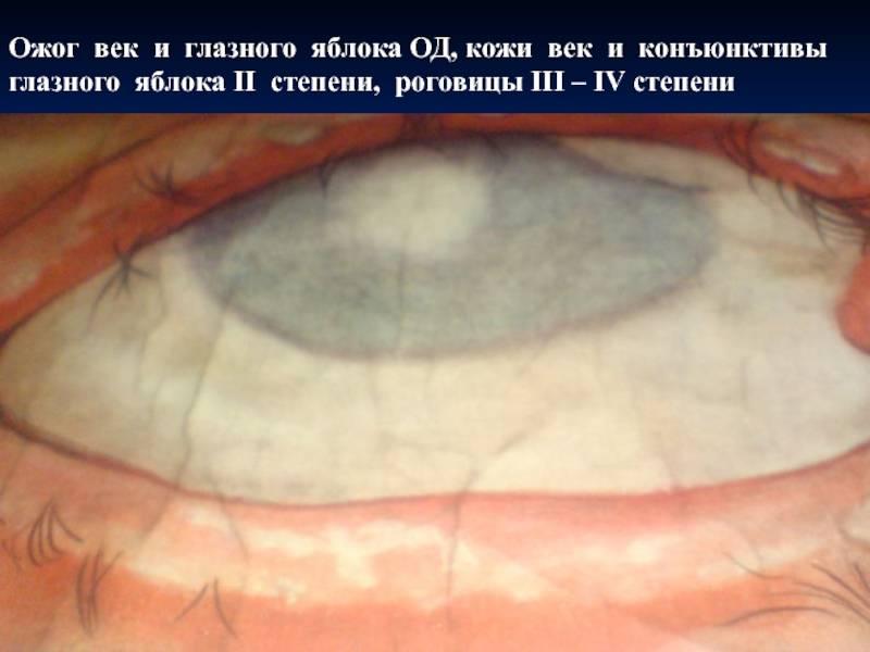 Птеригиум — складка конъюнктивы. описание, симптомы, лечение.