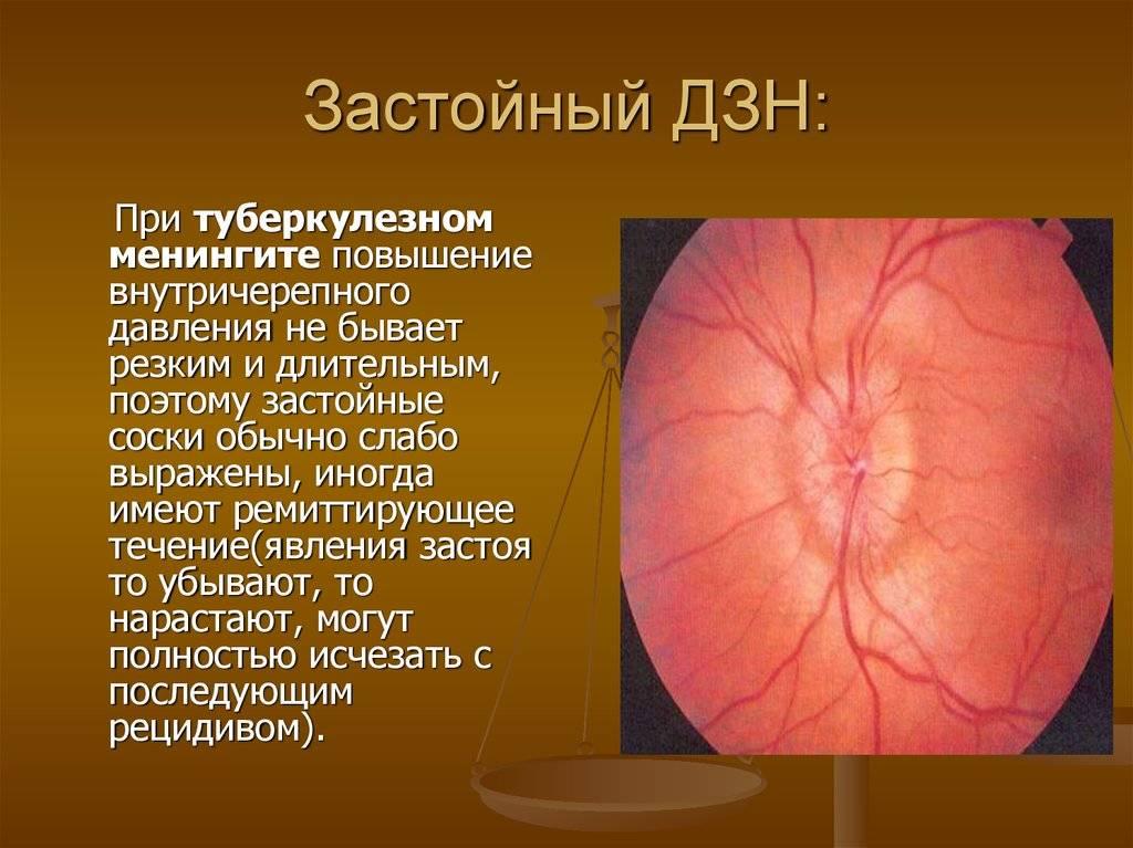 Застойный диск зрительного нерва: причины, симптомы, лечение oculistic.ru застойный диск зрительного нерва: причины, симптомы, лечение