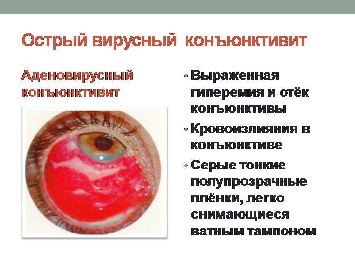Вирусный конъюнктивит - симптомы болезни, профилактика и лечение вирусного конъюнктивита, причины заболевания и его диагностика на eurolab