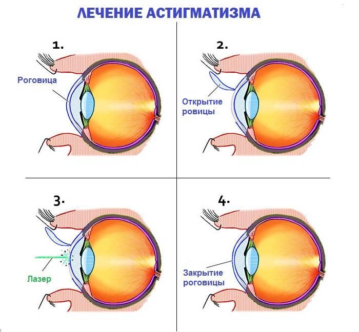 Астигматизм: что это такое, причины и симптомы патологии, как проявляется болезнь у детей, можно ли вылечить заболевание у взрослых, последствия патологии