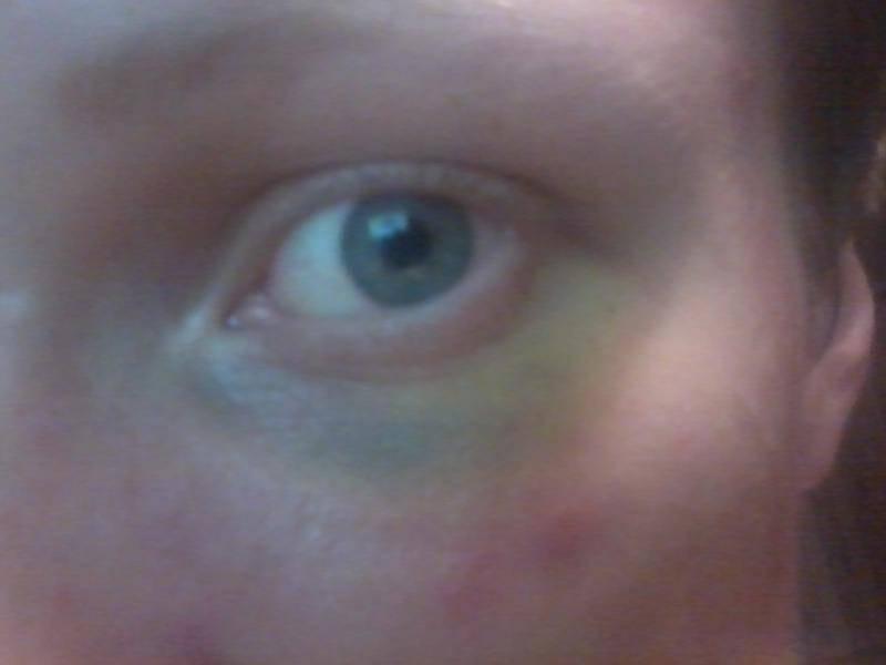 Через сколько дней проходит синяк под глазом