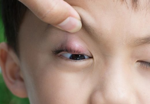 Фурункул у ребенка: причины появления и как лечить