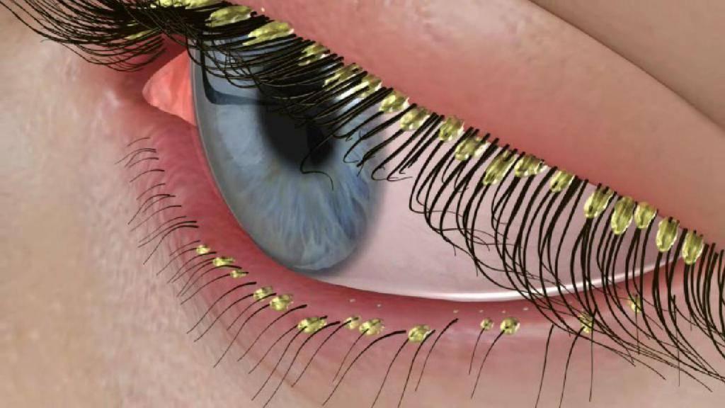 Ресничный клещ у человека: симптомы и лечение