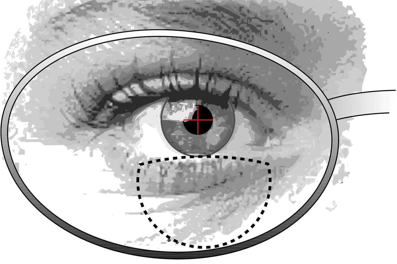 Как привыкнуть к линзам – адаптация глаз к оптике
