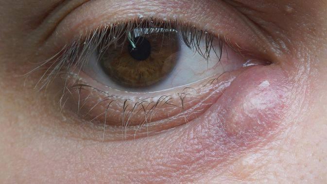 Наружный ячмень (hordeolum externum) - симптомы болезни, профилактика и лечение наружного ячменя (hordeolum externum), причины заболевания и его диагностика на eurolab