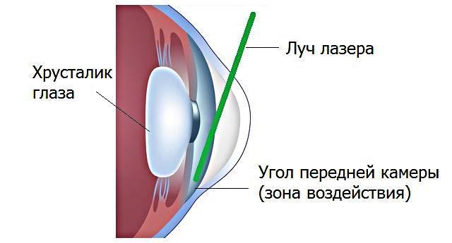 Лазерная гониопунктура: этапы проведения операции