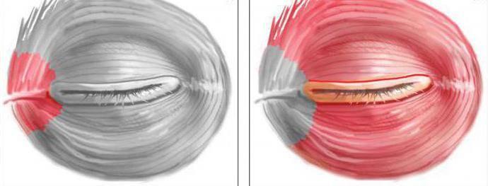 Мышцы глаза: строение, функции, заболевания