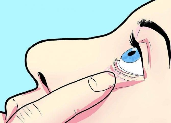 Назначение и строение конъюнктивального мешка глаза