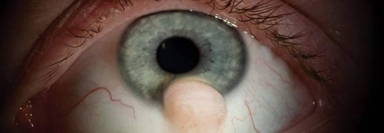 Пингвекула глаза: причины возникновения, симптомы и лечение