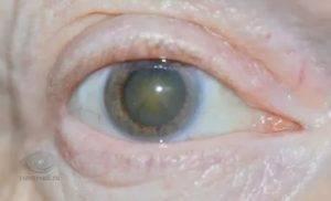 Туман в глазах: симптомы и причины проблемы