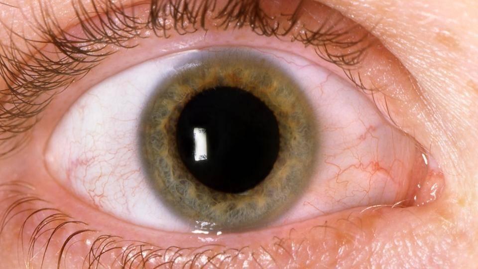 """Миоз: виды, симптомы и лечение и что это - """"здоровое око"""""""