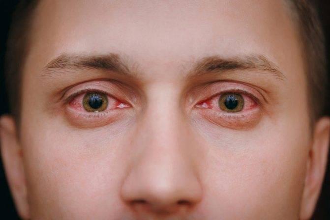 О чём говорят красные глаза и что с ними делать