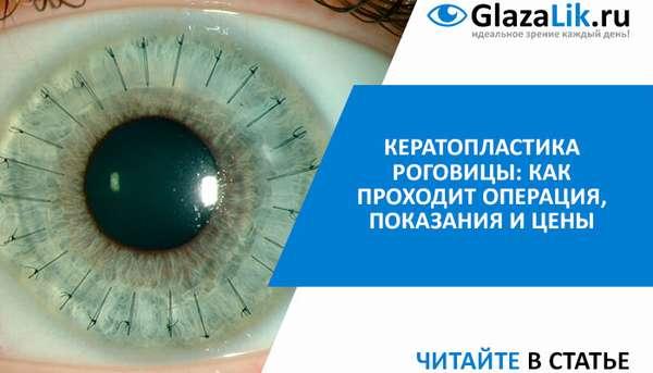 Показания и подготовительные меры для пересадки роговицы глаза