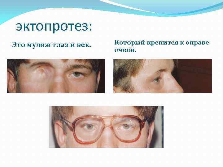 Удаление глаза у человека - как проводится, реабилитация