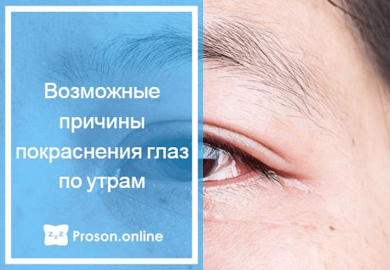 Красные глаза по утрам: причины покраснения