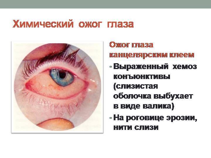 Ожоги роговицы: признаки, симптомы, лечение — онлайн-диагностика