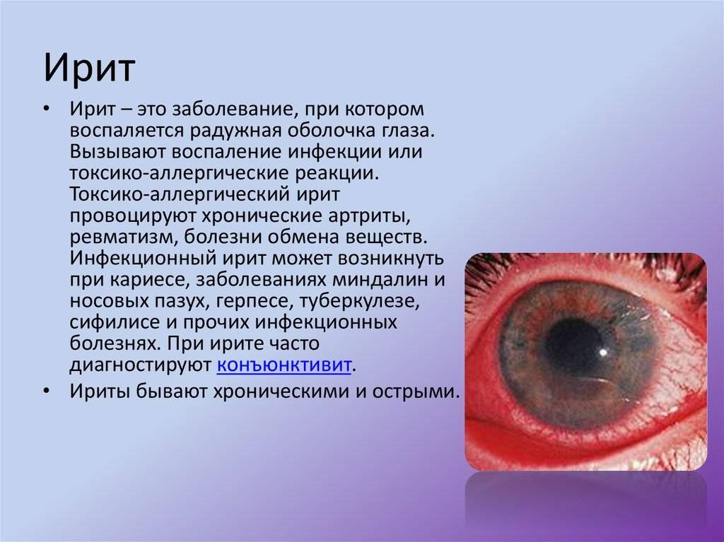 Иридоциклит - лечение, причины, симптомы, диагностика, осложнения