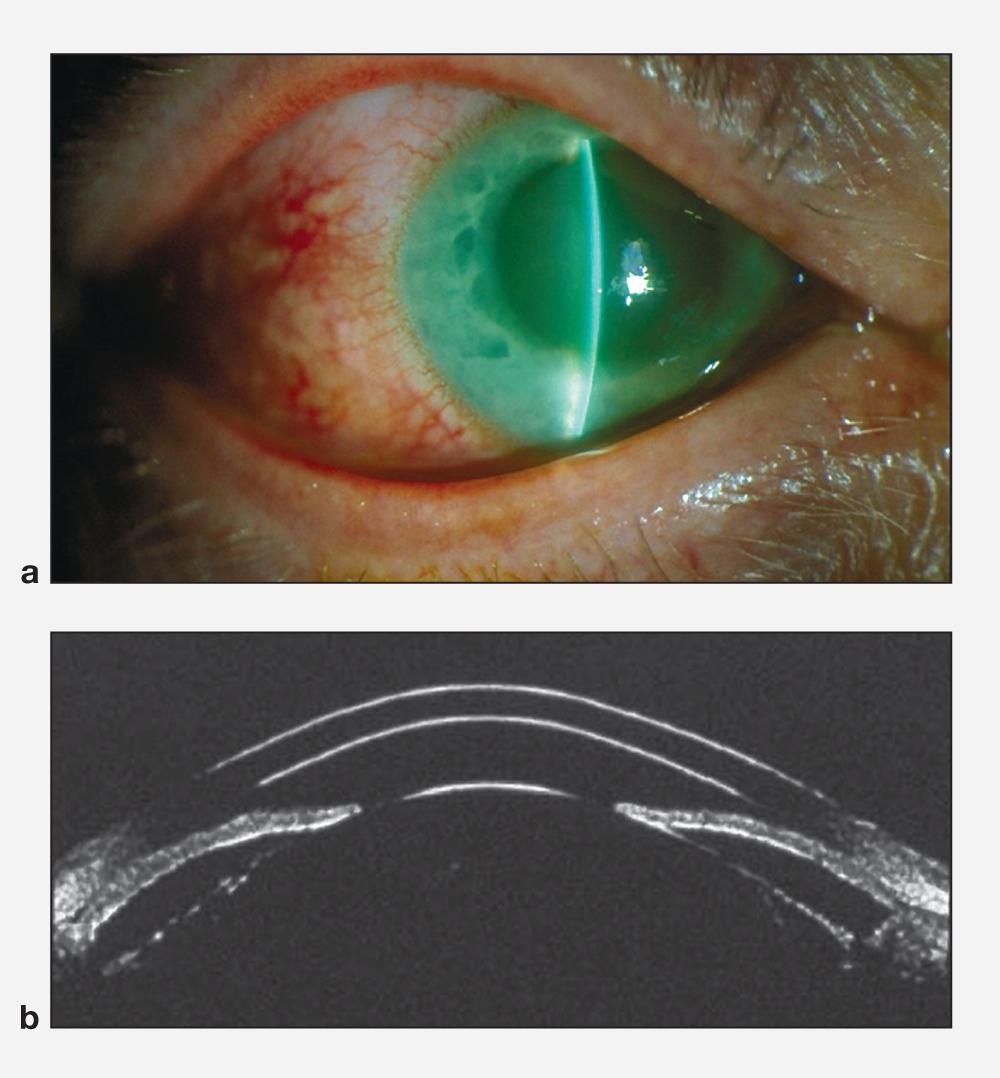 Глаукома: что это такое, причины, симптомы, диагностика, виды, стадии, лечение и профилактика