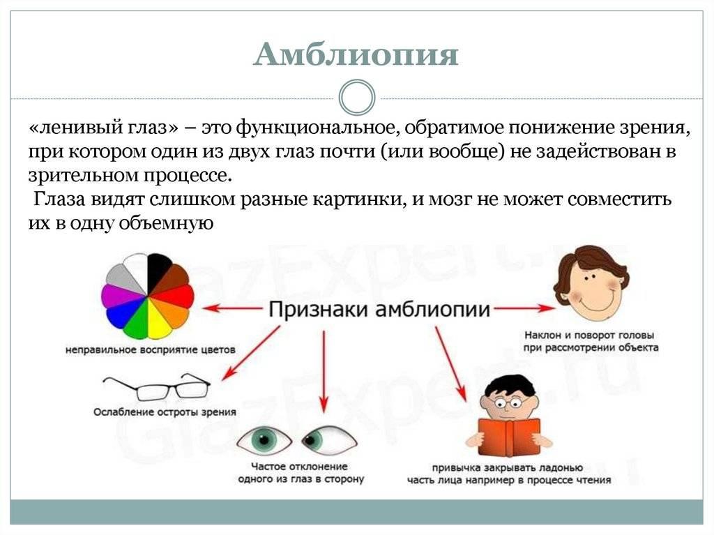 Амблиопия - симптомы, лечение, причины болезни, первые признаки