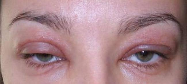 Аллергия на глазах: причины, симптомы, лечение, меры профилактики