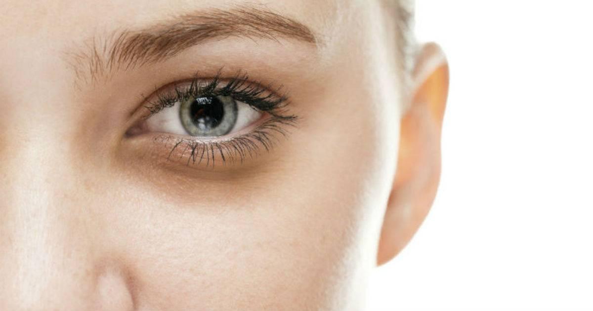 Желтые круги (желтизна) под глазами у женщин: причины пятен на коже