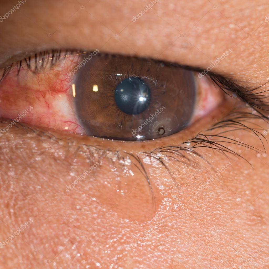 Повреждение слизистой глаза: первая помощь и лечение